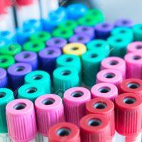 Tecnico Sanitario di Laboratorio Biomedico - Cambio compensativo